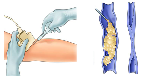 Scleroterapia varicelor