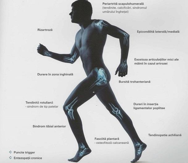 cum să tratezi dacă articulațiile picioarelor doare proeminență și dureri articulare
