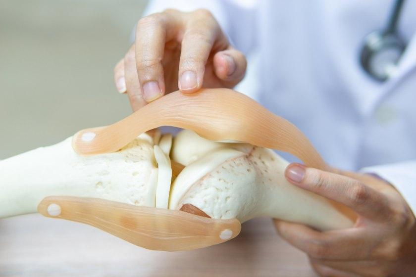 artroza costul tratamentului cu acid hialuronic