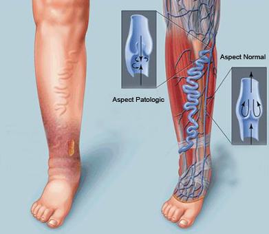 picioare durere venoasă